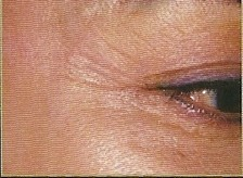 Platelet Rich Plasma  eyes before