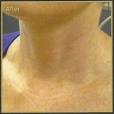 Platelet Rich Plasma  neck after