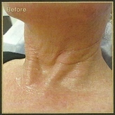 Platelet Rich Plasma  neck before