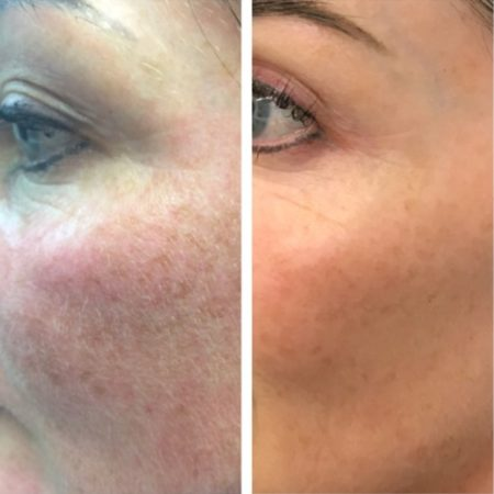 Before and After Personalised Skin Trajectory