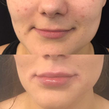 Before and after Fine Vein Removal