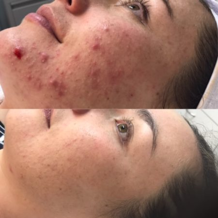 Before and after Personalised Acne Treatment