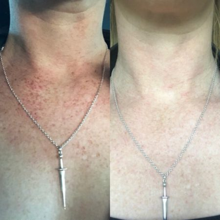Before and After Skin Pigmentation Treatment